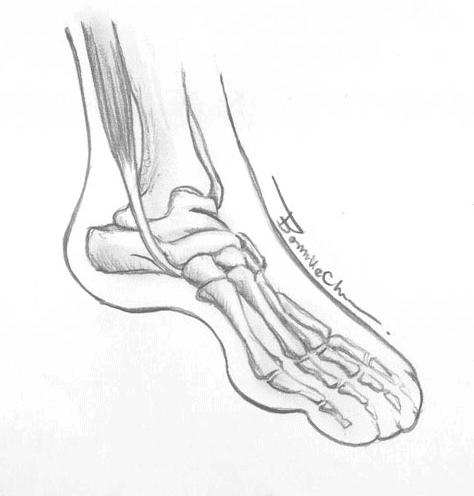 脛後肌腱炎