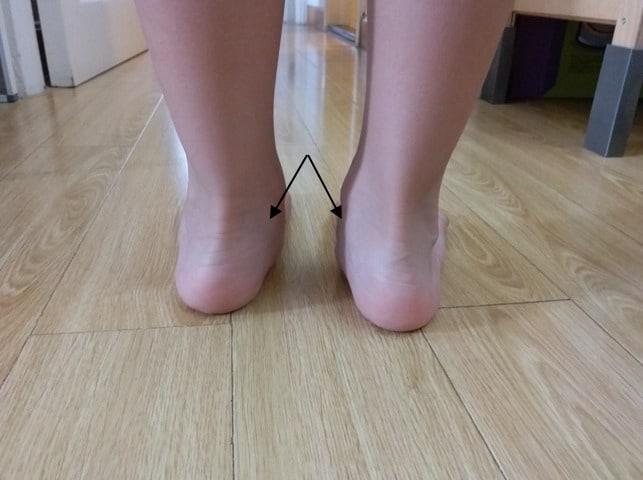 觀察後跟內側腳眼位置