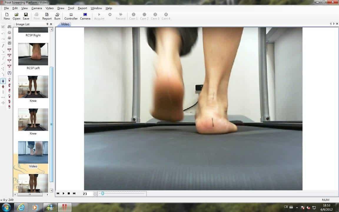 可從步態分析中觀察步行時後跟及小腿的偏歪