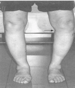 O形腳 (內膝退化)