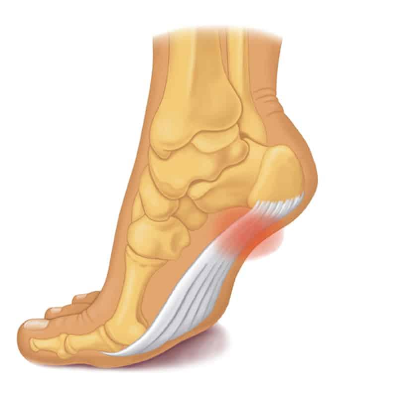 足底筋腱炎 位置