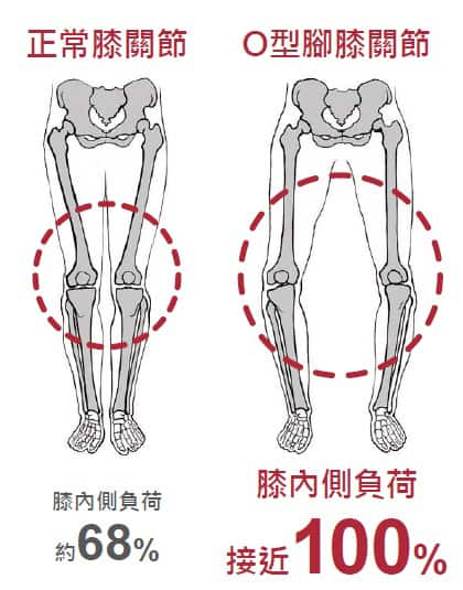 o leg knee